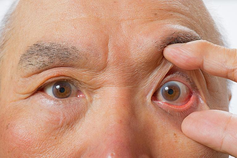 加齢黄斑変性症